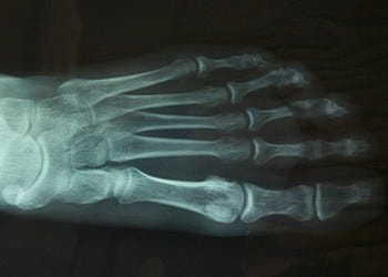 An x-ray of a foot.